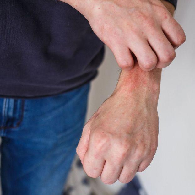 Objetos que pueden provocar dermatitis de contacto