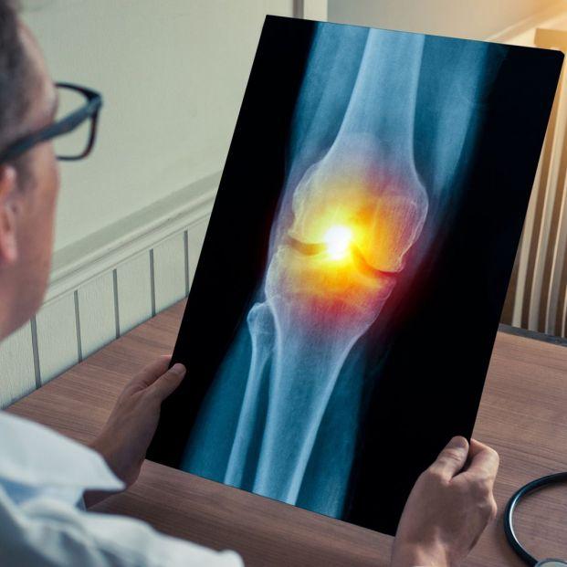 Para que se utiliza la gammagrafía ósea y cuándo se hace