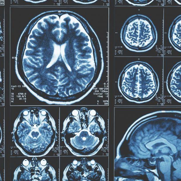 Las resonancias magnéticas avanzadas pueden mejorar el tratamiento del párkinson
