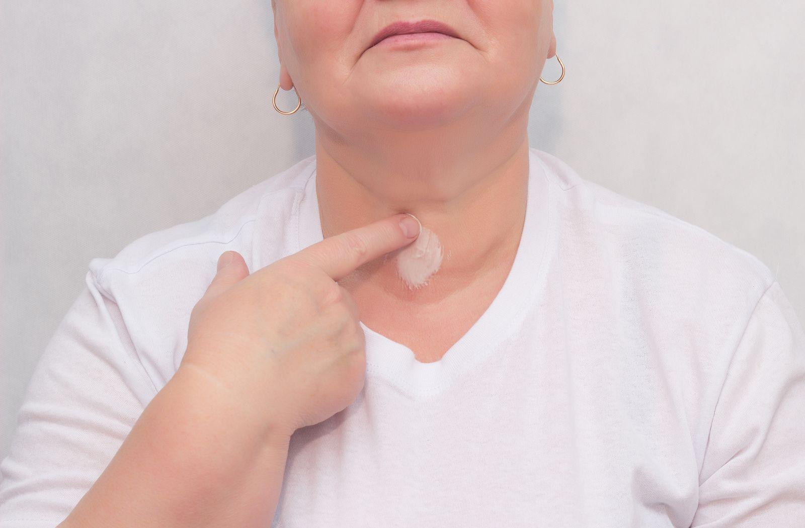Un mito indicaba que las mamografías y las radiografías dentales provocarían cáncer.
