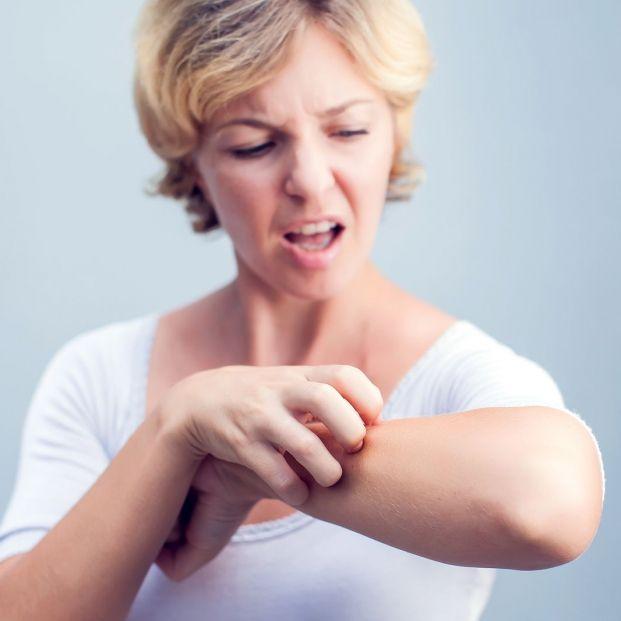 ¿Qué es la urticaria crónica?
