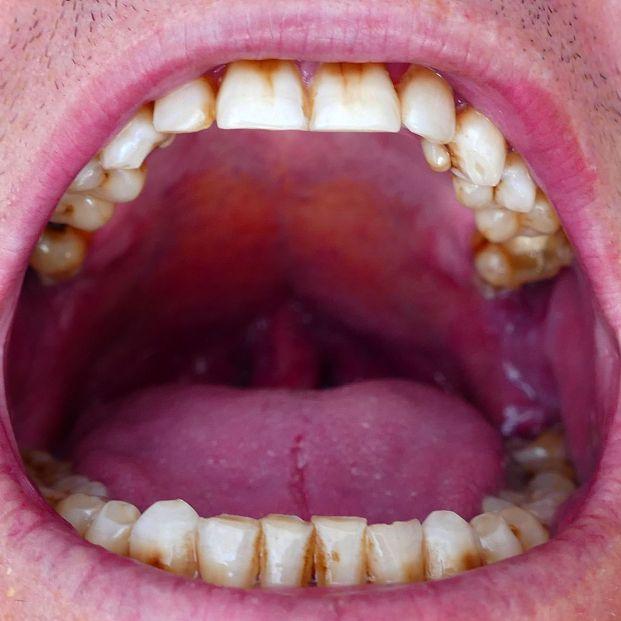 Autoexploración de boca, una sencilla medida de prevención frente al cáncer oral