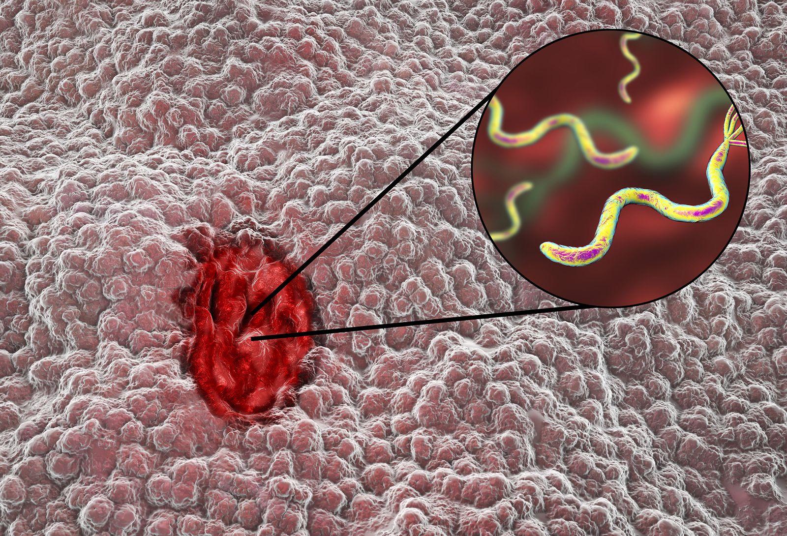 Pruebas Para Detectar El Helicobacter Pylori