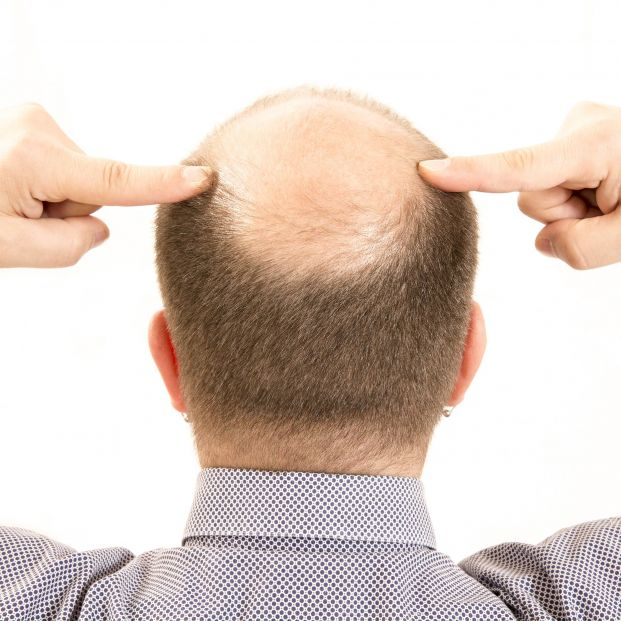 ¿Adiós a la calvicie?: Consiguen que crezca pelo usando células madres