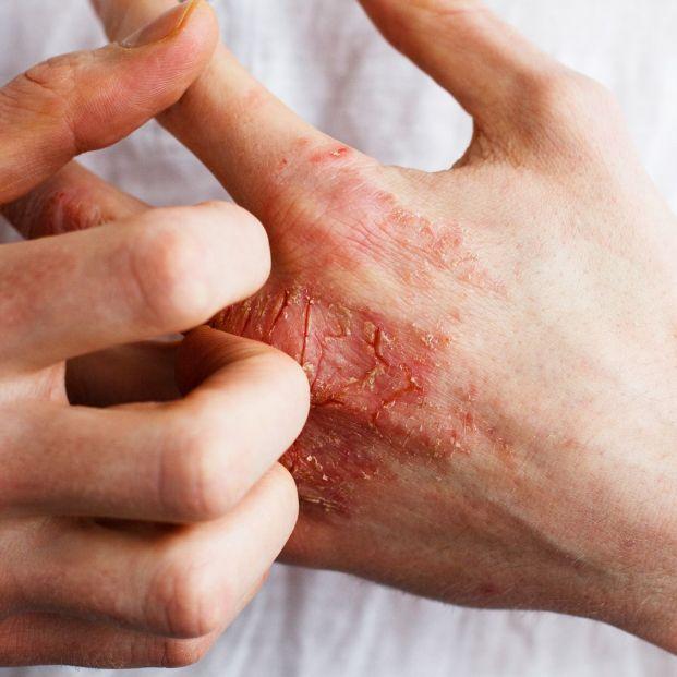 Eccema o psoriasis: ¿en qué se diferencian?