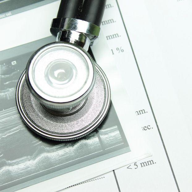 Cuántos tipos de ecocardiogramas hay y cómo se usan