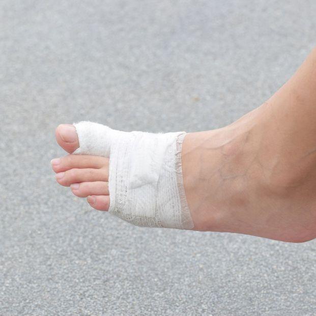 Los cuidados que debes seguir cuando te has fracturado un dedo del pie