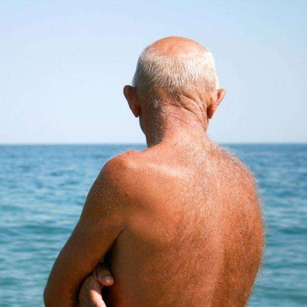 Cómo evitar que la piel se pele después de tomar el sol