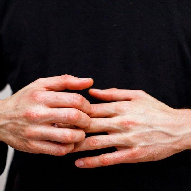 Cómo tratar la psoriasis