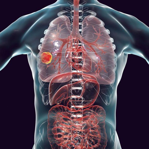 Evolución de la prevalencia de las enfermedades respiratorias en mayores y población general