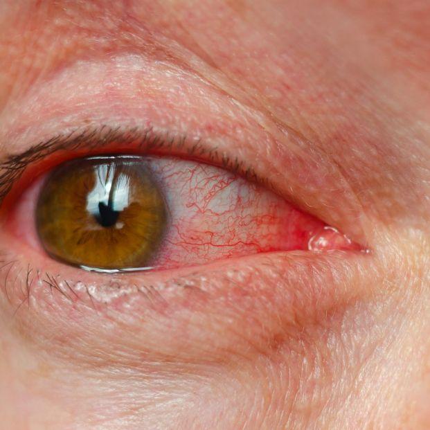 Los problemas oculares provocados por el agua de las piscinas