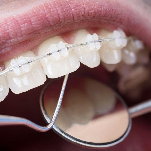 Adulto con brackets siendo evaluado por el dentista