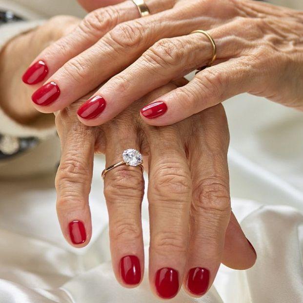 Efectos de la quimioterapia en las uñas