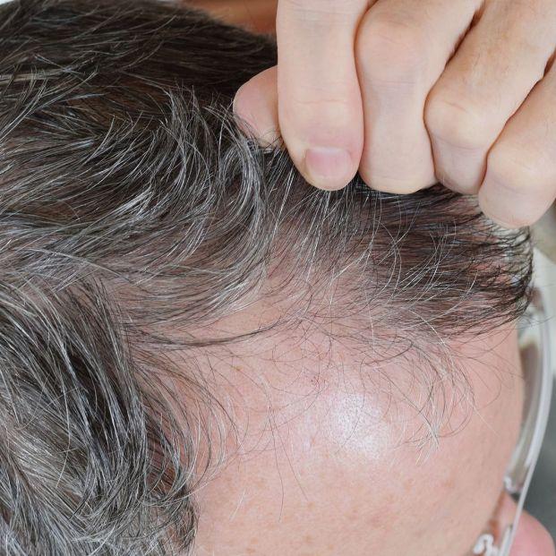 Tricotilomanía o arrancarse el pelo, qué hay detrás de este fenómeno