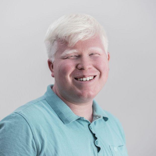 Albinismo y melanina, qué les relaciona y por qué se produce este trastorno