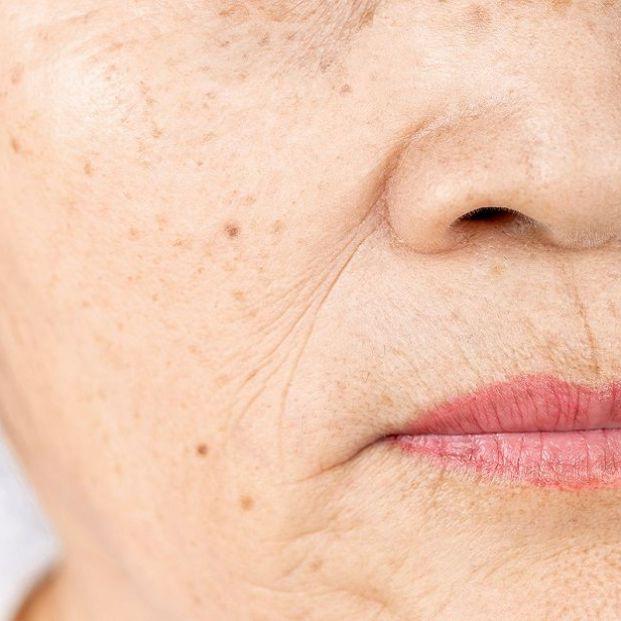 ¿Qué son los puntos rojos tan frecuentes en personas mayores?