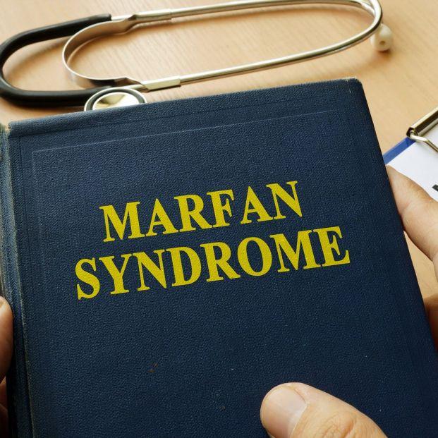 Qué es el Síndrome de Marfan