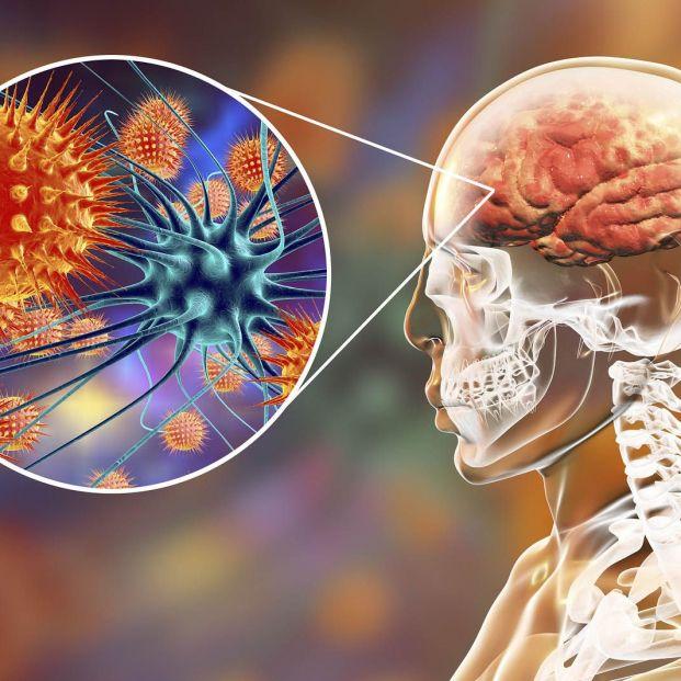 Cómo es la meningitis bacteriana en personas mayores