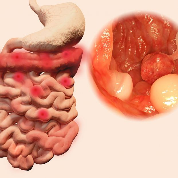Pólipos en el colon