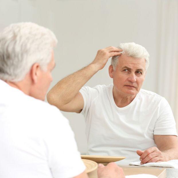 Alopecia difusa ¿en qué consiste esta pérdida capilar?