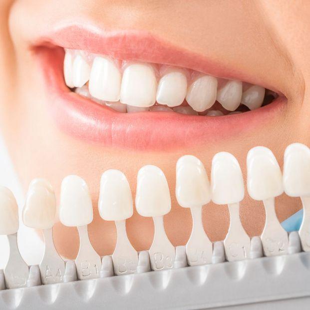 ¿En qué consiste un tratamiento de blanqueamiento dental?