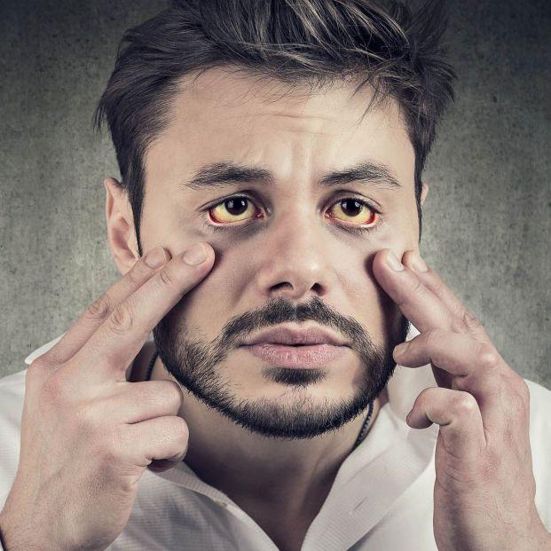 adulta A icterícia pode ocultar distúrbios como hepatite ou cirrose