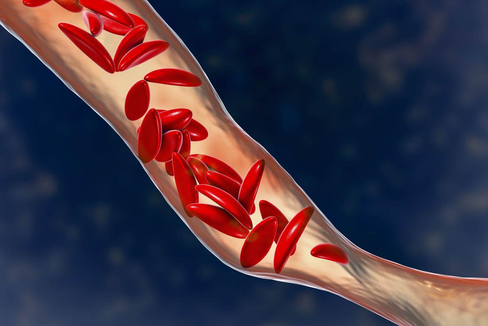 Qué es la anemia drepanocítica