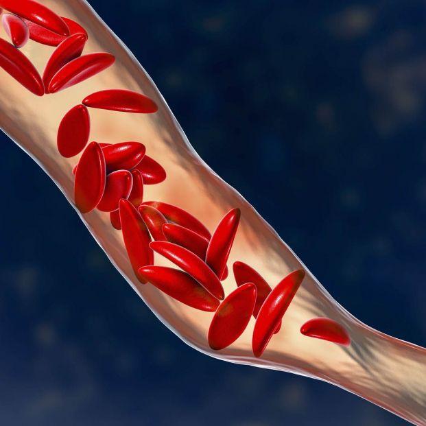 Qué es la anemia drepanocítica y el positivo avance en su tratamiento