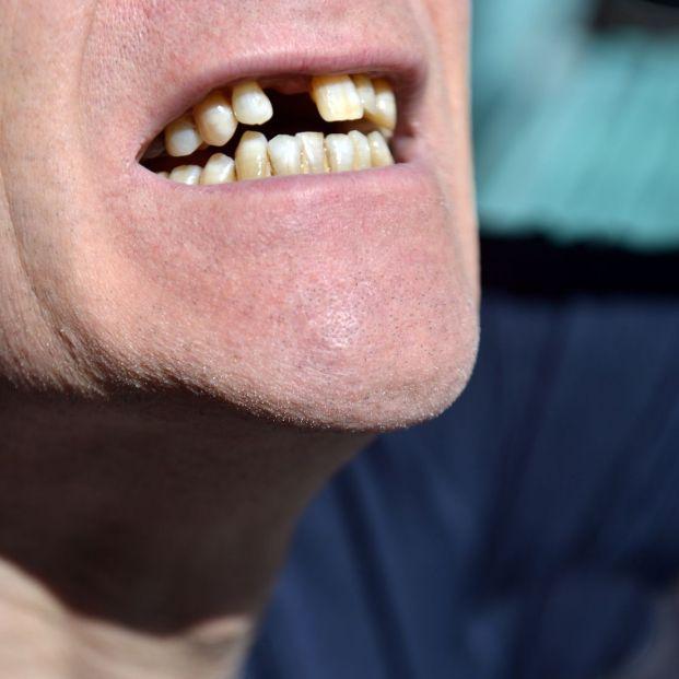 ¿Qué ocurre si pierdes un diente y no lo repones?