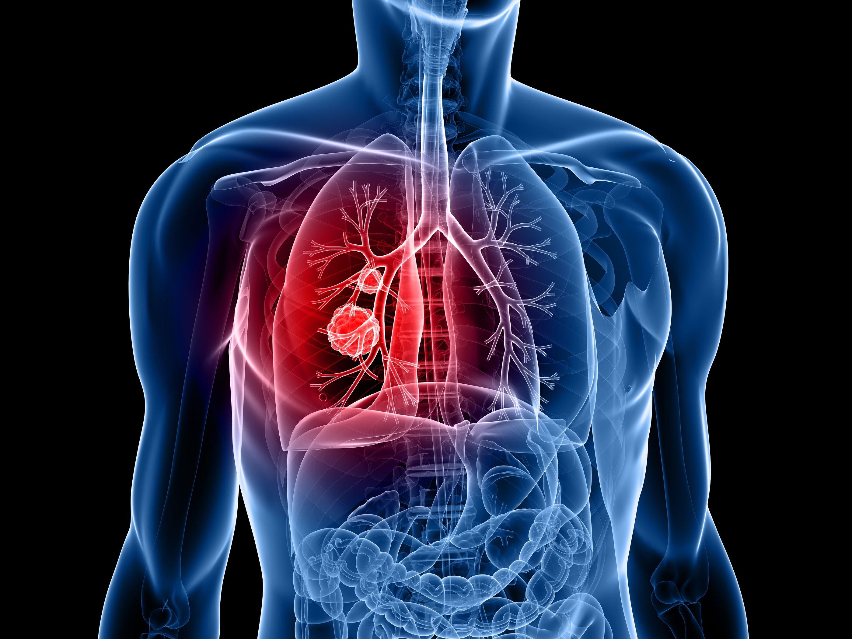que es cancer bronquial