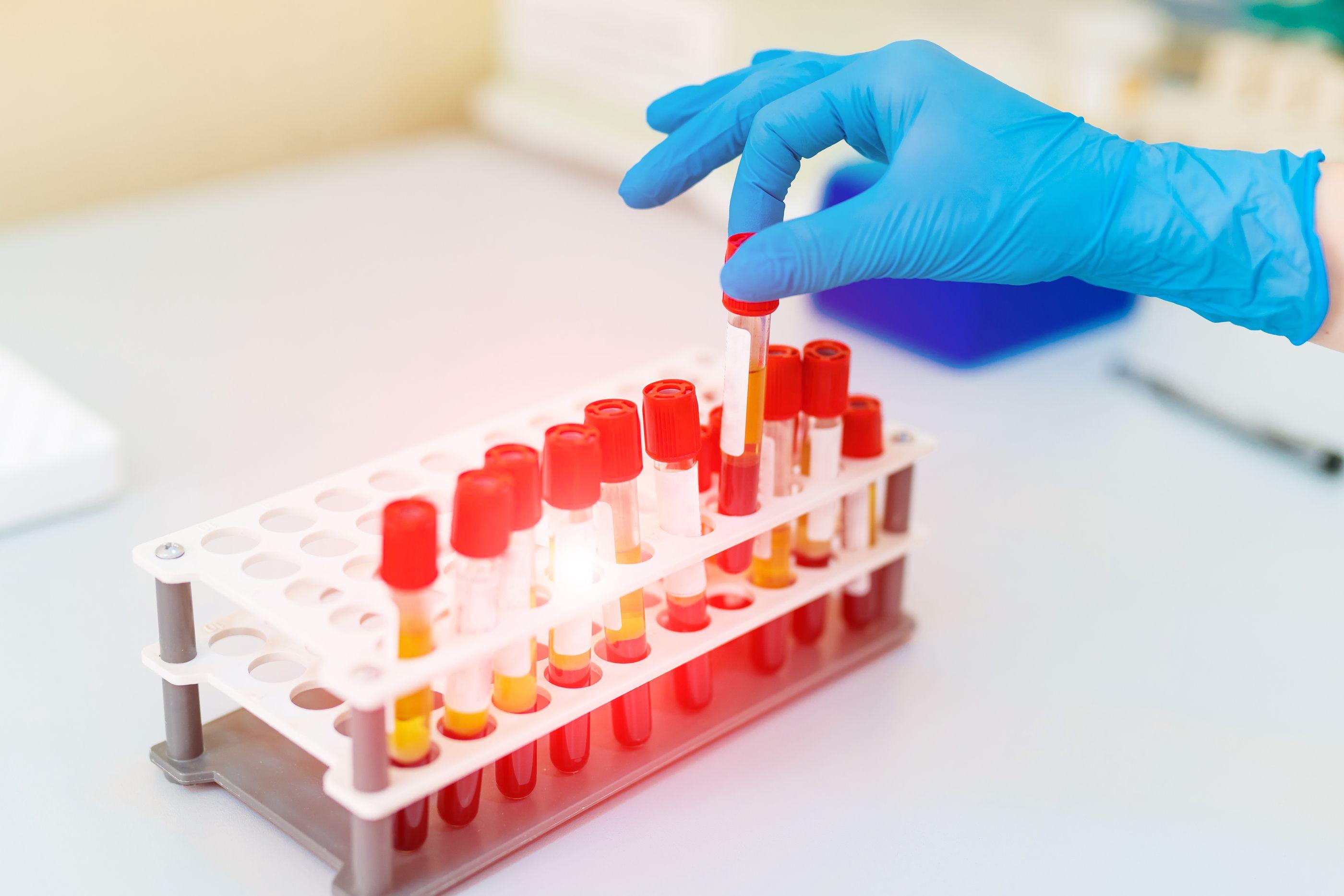 biopsia de próstata negativa para el cáncer de lab
