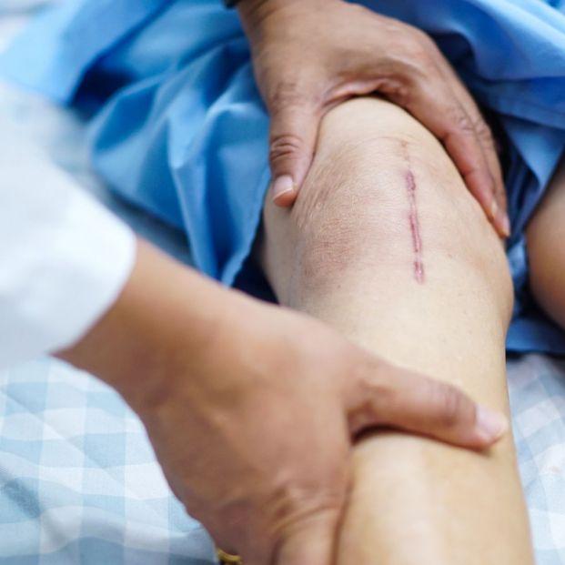 Masajes en cicatrices post quirúrgicas