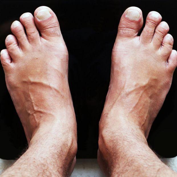 ¿Qué es el 'hallux varus'? La deformidad del dedo gordo del pie
