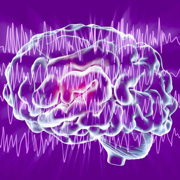Éxito en la aplicación de un nuevo tratamiento láser para abordar lesiones epilépticas localizadas