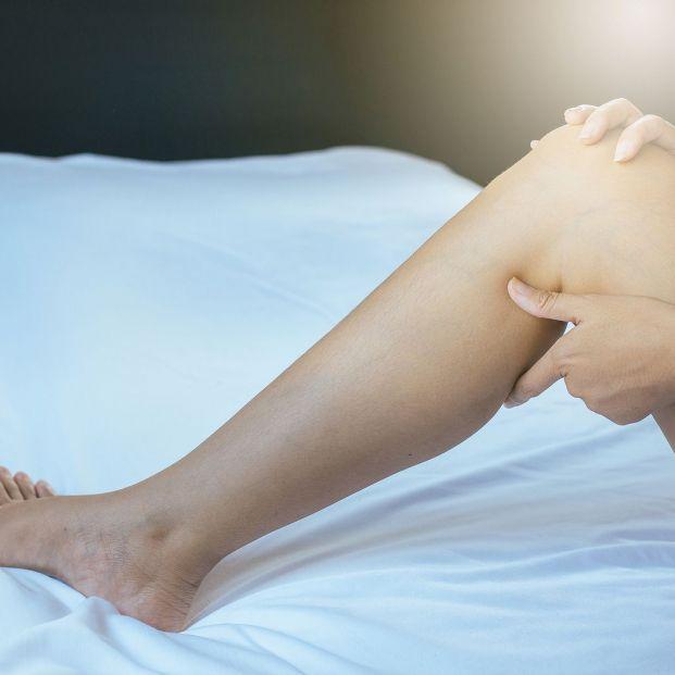 Cómo aliviar el dolor provocado por las varices (Bigstock)