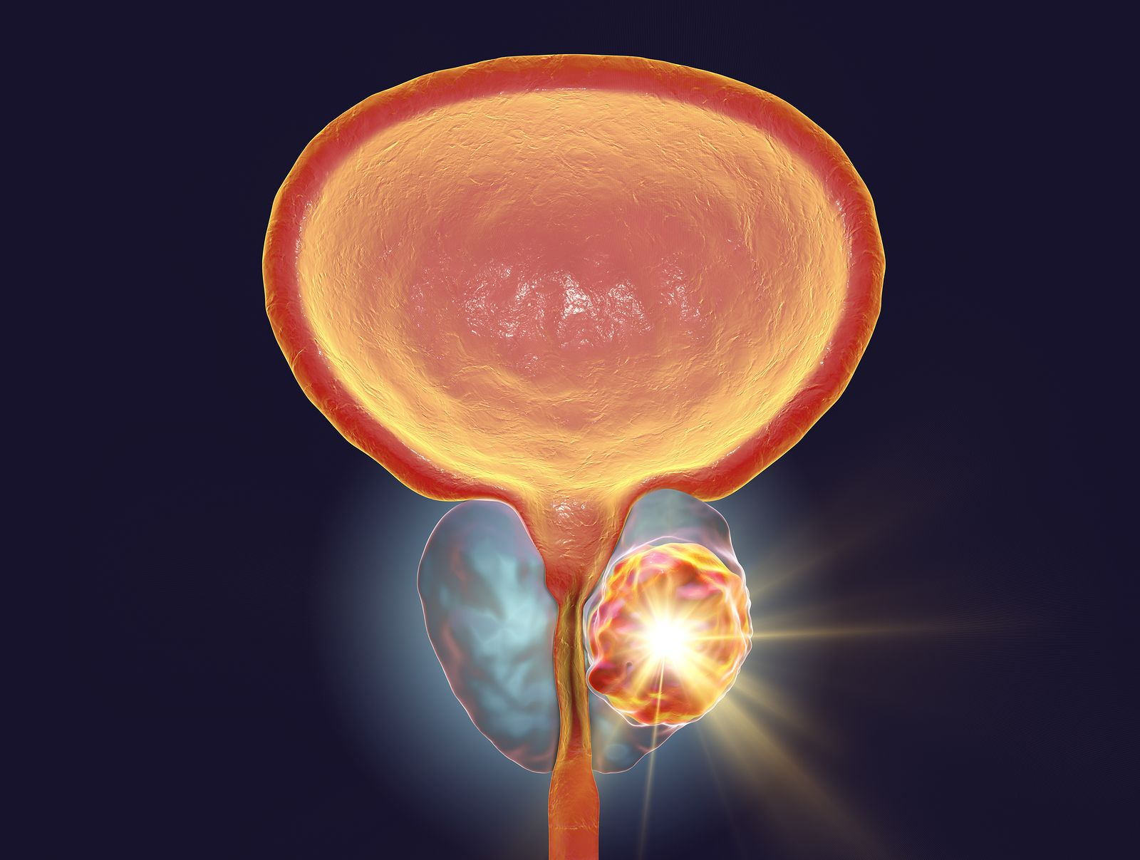 antibióticos adecuados para próstata