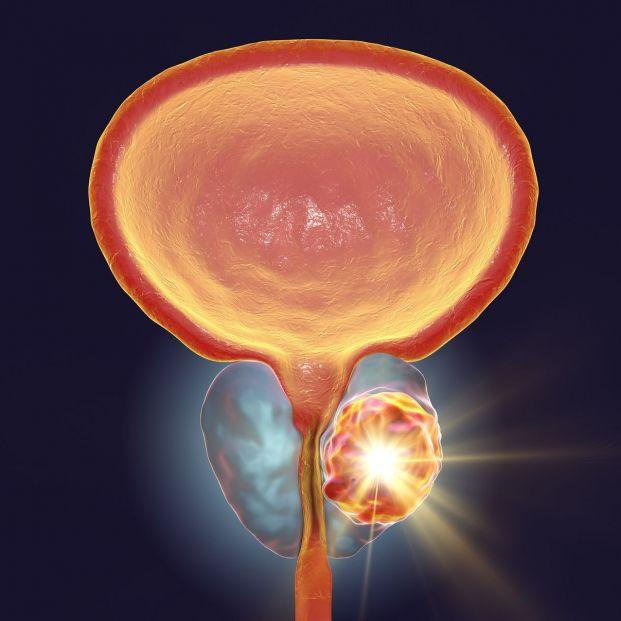 prostatitis y espasmos de vejiga
