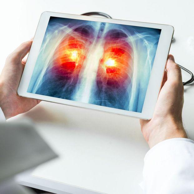 Posibles causas del cáncer de pulmón en no fumadores