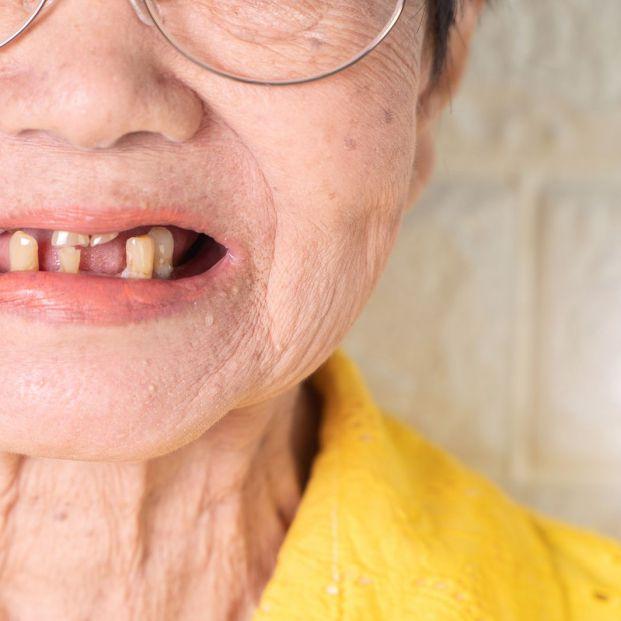 ¿Cuáles son las opciones si te faltan piezas dentales?