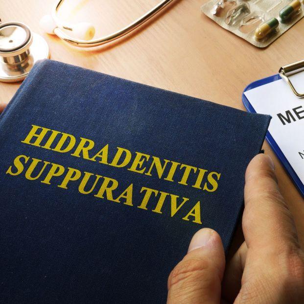 Hidradenitis depurativa