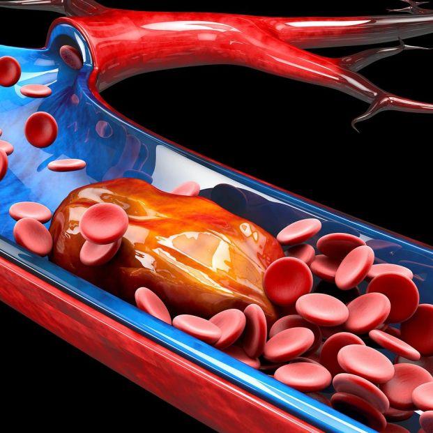 Trombosis y enfermedad oncológica