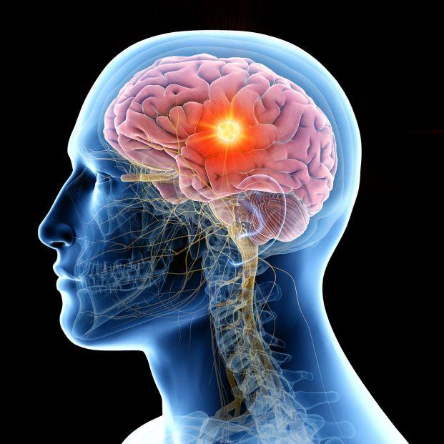 Estimulación Cerebral Porfunda y Alzheimer