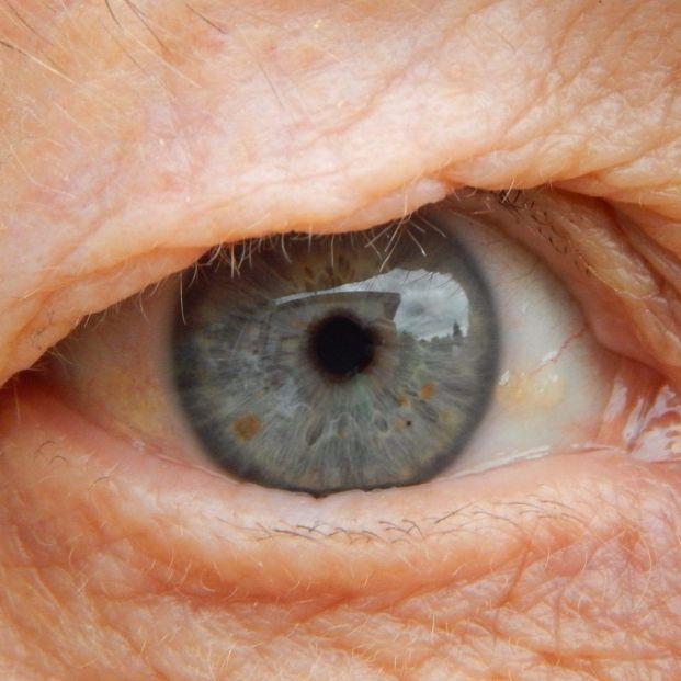 CEOMA apoya 'Objetivo DMAE' para mejorar la calidad de vida de los mayores con degeneración macular