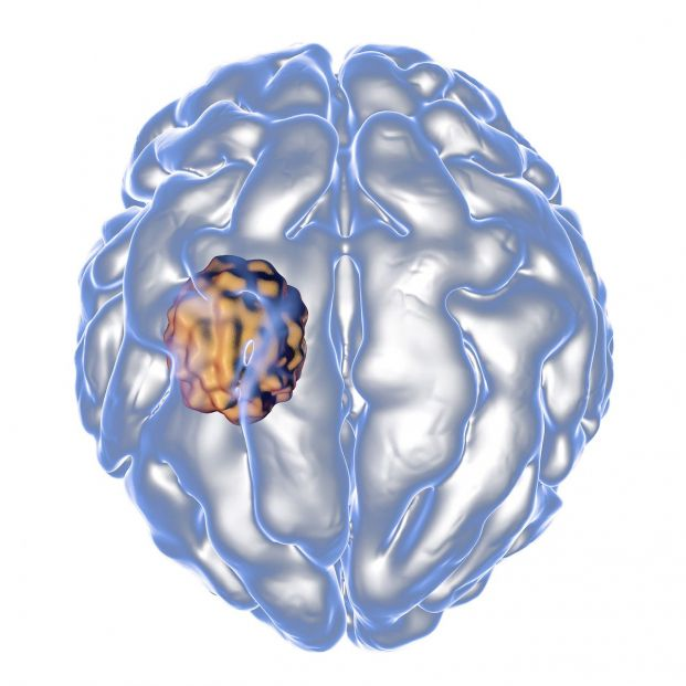 Un estudio descubre nuevas lesiones en las conmociones cerebrales que posibilitan alternativas de tratamiento