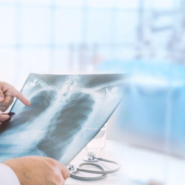 enfermedades que afectan a la pleura del pulmón