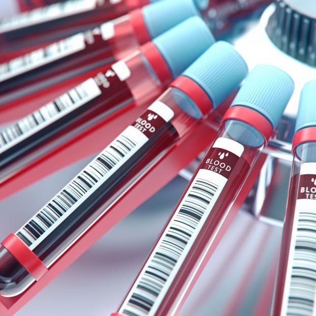 Análisis de sangre. Es posible detectar en su fase inicial hasta 13 tipos de cáncer con una sola gota de sangre