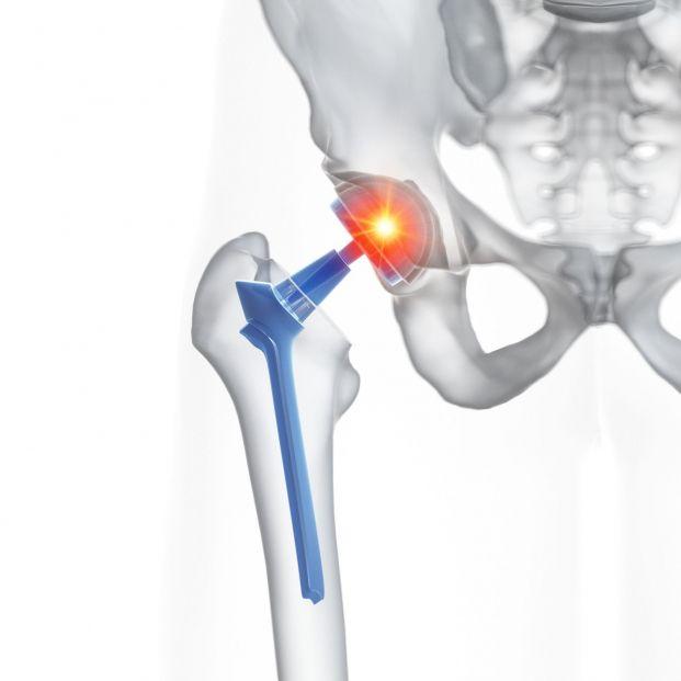 Cómo ayuda la fisioterapia tras una operación de prótesis de cadera (Bigstock)