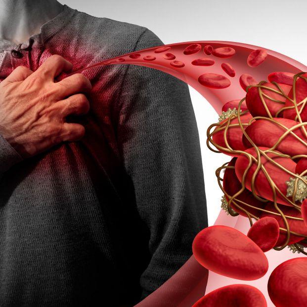 El Complejo Hospitalario de Albacete prueba con éxito una técnica para la embolia pulmonar grave