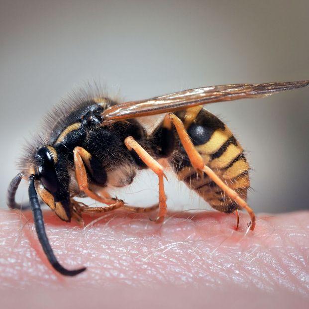 La picadura de insectos puede provocar un shock anafiláctico (bigstock)