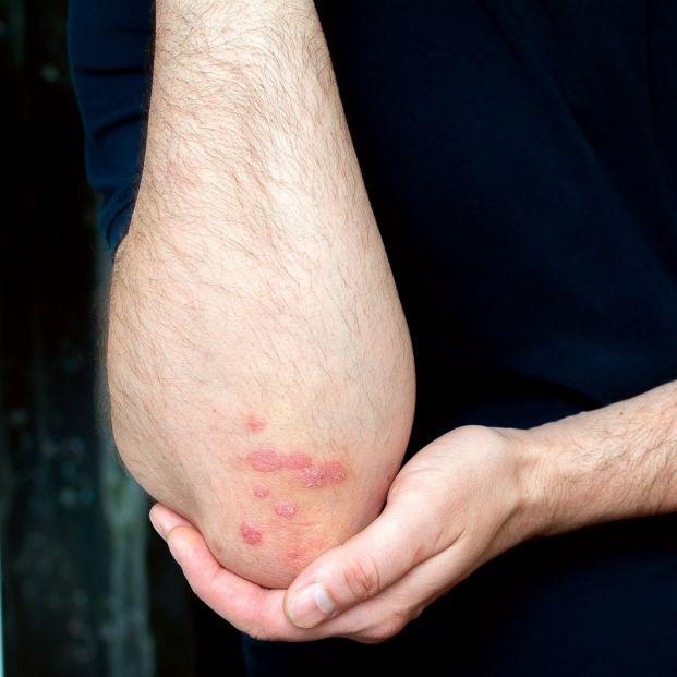 ¿Cuáles son los síntomas y las causas más comunes de la psoriasis?